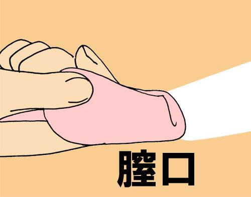 月経カップの折り方・パンチダウンフォールド